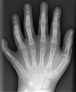 http://commons.wikimedia.org/wiki/File:Polydactyly_01_Lhand_AP.jpg