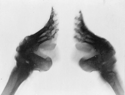 http://commons.wikimedia.org/wiki/File:Bound_feet_(X-ray).jpg