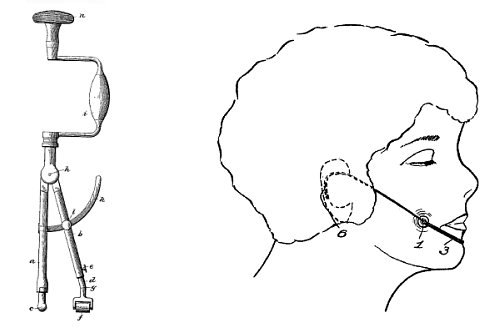 http://www.google.com/patents/about?id=jk1aAAAAEBAJ&dq=goetze+dimples