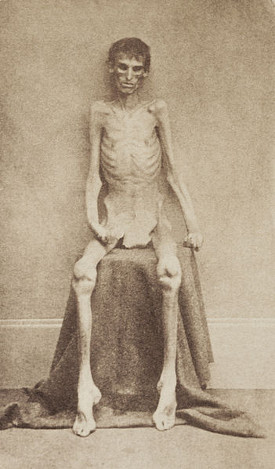 http://commons.wikimedia.org/wiki/File:Andersonvillesurvivor.jpg