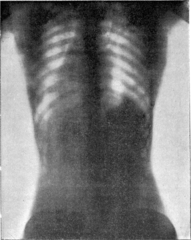 http://commons.wikimedia.org/wiki/File:Corset1908_047Fig25.png