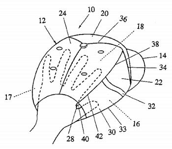 https://www.google.com/patents/US5542129