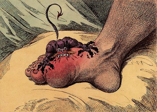 http://commons.wikimedia.org/wiki/File:The_gout_james_gillray.jpg