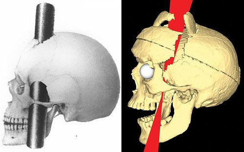 https://commons.wikimedia.org/wiki/File:PhineasGage_IronPaths_BigelowRatiuCombined.jpg