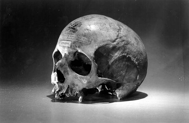 https://commons.wikimedia.org/wiki/File:Skull_of_Alexander_Pearce.jpg